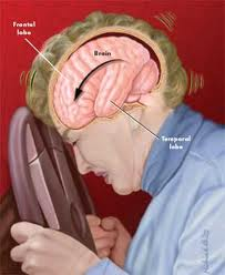 Severe Brain Injury, Treatment and Care