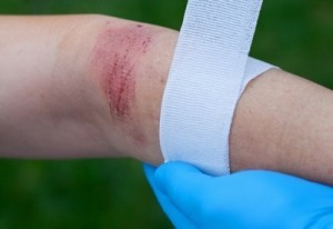 Indianapolis Burn Injury Lawyer