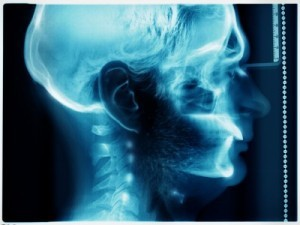 Indiana Brain Injury Lawyer